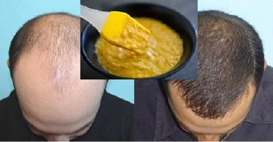 , Esta mascarilla casera es extremadamente eficaz para el crecimiento del cabello!, Alimenta y Cura
