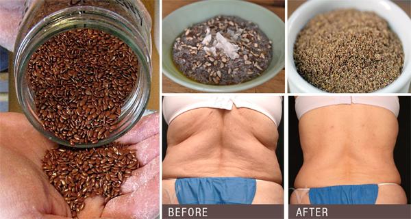 , 2 poderosos ingredientes que limpian su cuerpo de parásitos y reduce el depósito de grasas, Alimenta y Cura