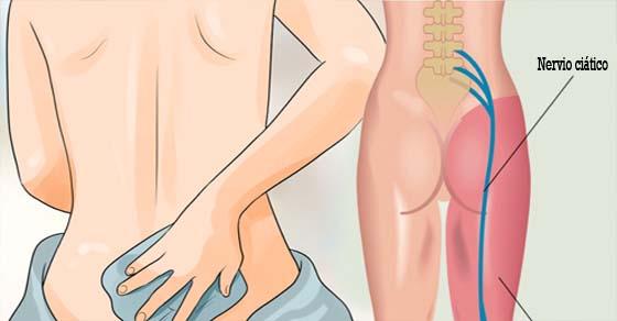 , 8 remedios para el dolor de la ciática que hay que probar antes de colocar otro analgésico en la boca, Alimenta y Cura
