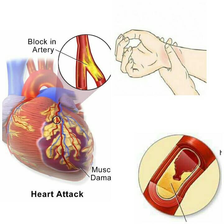 , 80% de los infartos podrían prevenirse si todos supieran estas 5 simple cosas, Alimenta y Cura