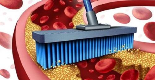 , Remedio para tratar las arterias obstruidas y la inflamación, Alimenta y Cura