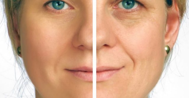 , ¿El secreto de las Celebridades Para Parecer 15 años más joven? Este extraordinario nuevo producto para eliminar las arrugas hace exactamente eso – ¡Expertos en Botox quedaron incrédulos con sus resultados!, Alimenta y Cura