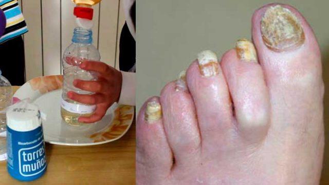 , Esta es cura definitiva de 2 ingredientes para eliminar de por vida los hongos en las uñas, Alimenta y Cura