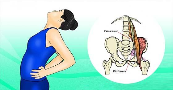 , Este músculo oculto es la causa de tu dolor de ciática y 2 estiramientos fáciles te darán alivio instantáneo, Alimenta y Cura