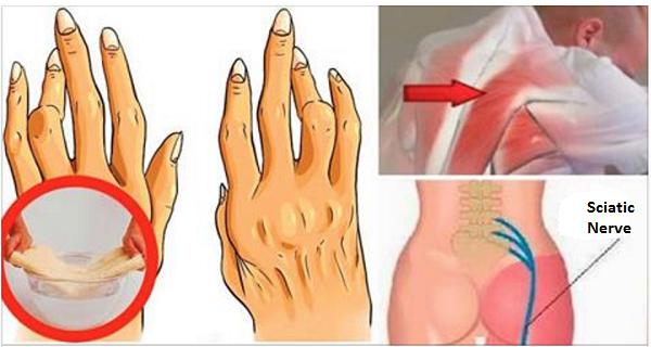 , Este truco simple poco conocidos le ayudará a combatir la artritis, ciática y dolor de espalda mejor que las píldoras!, Alimenta y Cura