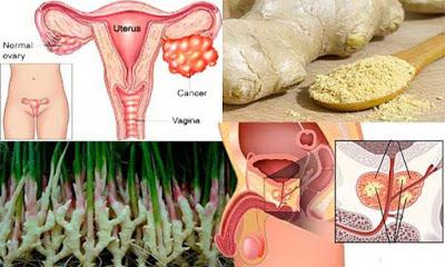 , La investigación muestra: El jengibre destruye el cáncer de próstata, ovario y cáncer de colon mejor que la quimioterapia, Alimenta y Cura