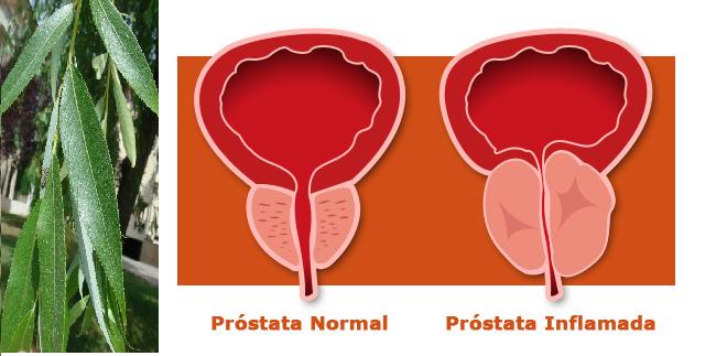 , La mejor cura de todo el mundo para la próstata, no existe nada mejor!!, Alimenta y Cura