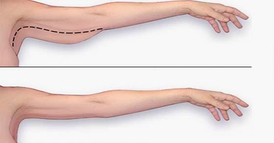 , Los mejores ejercicios para perder la grasa de los brazos en el hogar, Alimenta y Cura