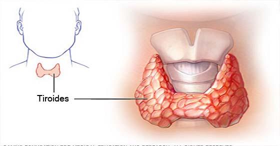 , Nunca escucharas esto de tu médico: cómo curar tu glándula tiroides con sólo dos ingredientes!, Alimenta y Cura, Alimenta y Cura