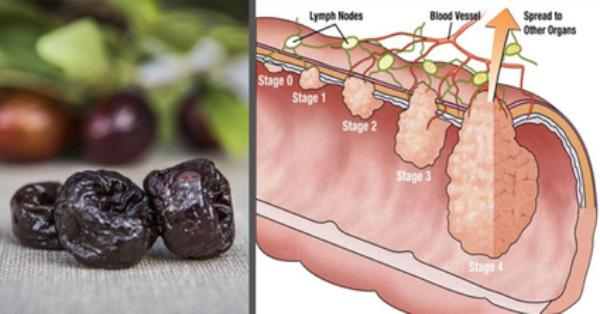 , Esta fruta Probiótica puede reducir las probabilidades de Cáncer de Colon!, Alimenta y Cura