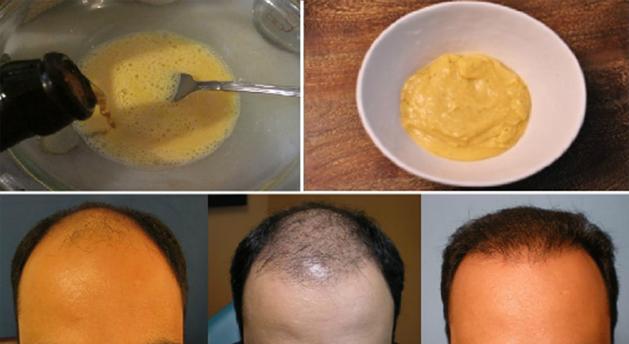, Si con esto no evitas que se te caiga el cabello nada lo evitara. Aumenta su crecimiento YA!, Alimenta y Cura
