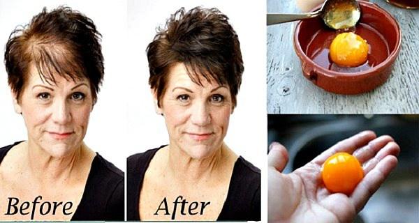 , Usted ha perdido parte de su pelo? Aquí es cómo crecer más rápido de los pelos!, Alimenta y Cura