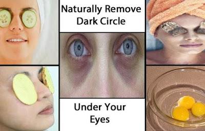 , Cómo deshacerse de los círculos negros bajo los ojos fácil y eficientemente, Alimenta y Cura