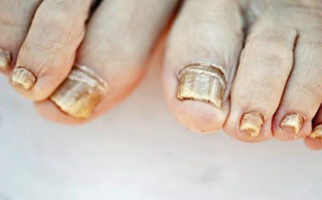 Quien curaba el hongo de las uñas por el yodo