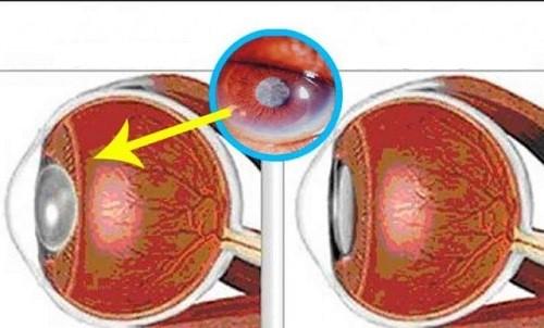 , Poderoso ingredientes natural que puede mejorar tu visión en un 97% / bota tus lentes Ahora!, Alimenta y Cura