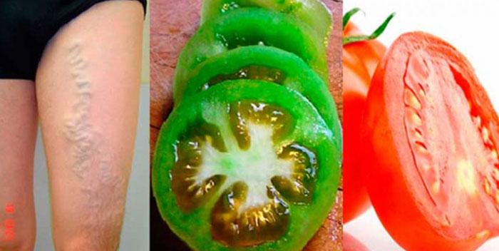 , Cura Tus Várices Con Tomates Verdes Y Rojos En Tan Solo 2 Semanas… ¡Luego De Que Lo Compruebes Te Sorprenderá!, Alimenta y Cura