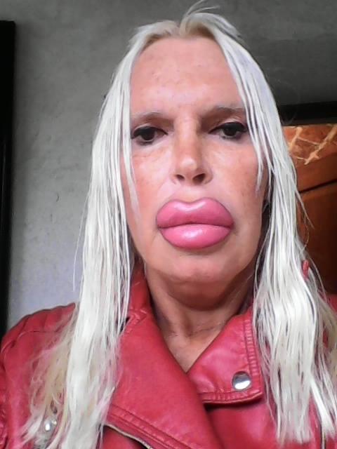 , Esta Mujer Se Gastó 75000$ En El Look Perfecto. Las Fotos Del Antes Las Tienes Que Ver Son Impresionantes, Alimenta y Cura