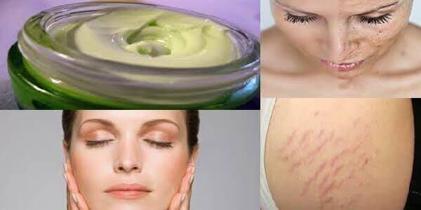 , GEL 1000% NATURAL para eliminar estrías, quemaduras, arrugas y manchas, Alimenta y Cura
