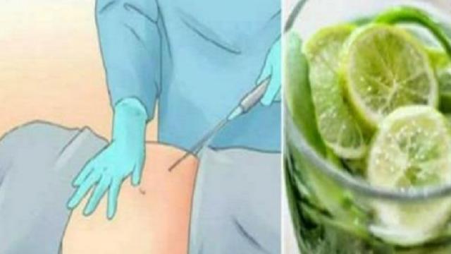 , Olvídese de la liposucción: elimine el exceso de grasa de manera rápida y eficaz con este poderoso elixir., Alimenta y Cura