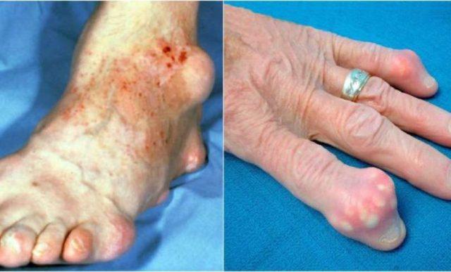 quitar tofos acido urico aliviar a dor da gota enfermedades ocasionadas por acido urico