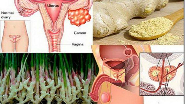 , El jengibre destruye el cáncer a la próstata, a los ovarios y al cáncer de colon mejor que la quimioterapia., Alimenta y Cura