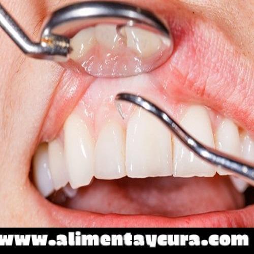 , 14 razones por las que te sangran las encías al cepillarte los dientes, Alimenta y Cura