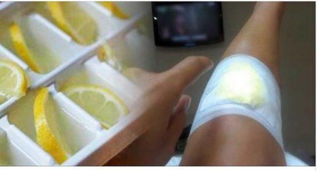 , Coloca un Limón de esta Manera en tus Rodillas si Te Duele y Elimina el DOLOR para Siempre., Alimenta y Cura