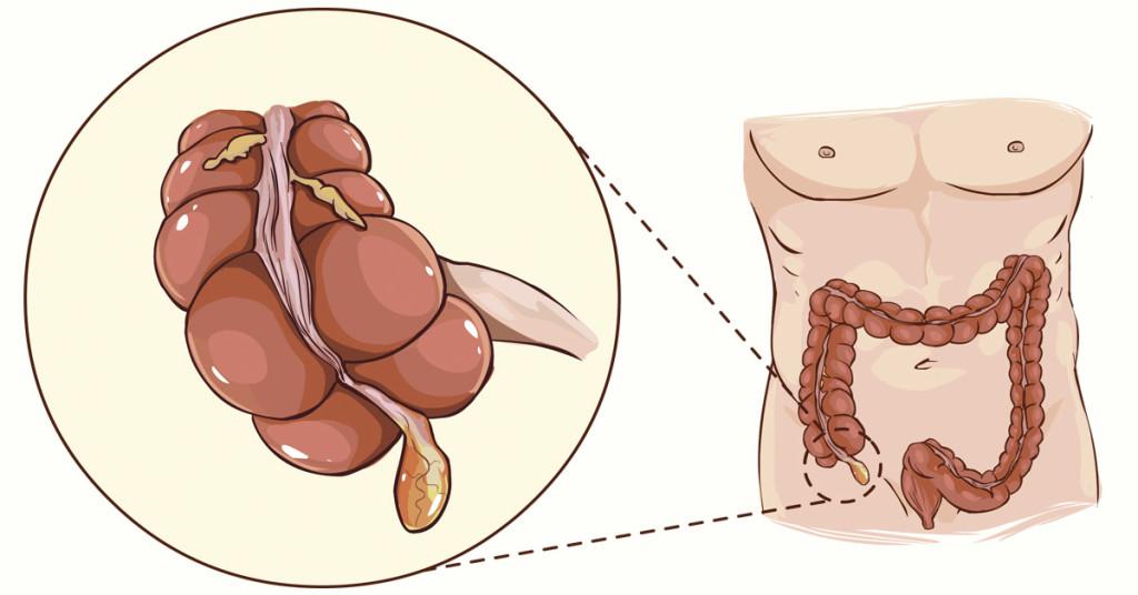 investigadores-descubren-que-nuestro-apendice-no-es-tan-inutil-despues-de-todo-01