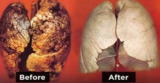 , Cómo limpiar y desintoxicar sus pulmones en sólo 3 días, Alimenta y Cura, Alimenta y Cura
