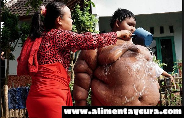 EL niño más gordo del mundo, pesa 192 kilos a sus 10 años de edad.
