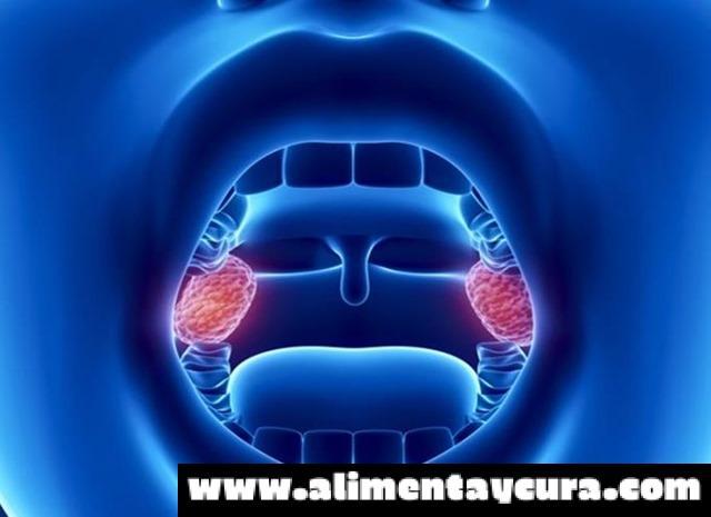 Médico Famoso Nos Recomienda: Cómo Desinflamar Las Amígdalas O ...