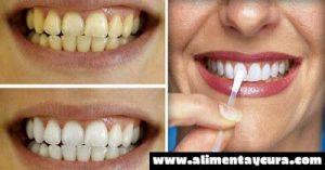 , ¡Este poco conocido y barato agente de desintoxicación blanquea los dientes como magia!, Alimenta y Cura