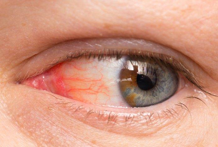 infecciones en los ojos