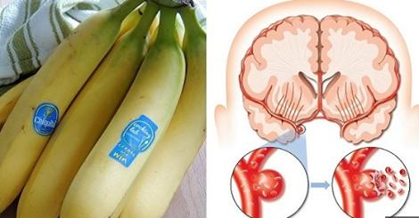 , Mira lo que le pasa a tu corazón, cerebro y cintura si consumes 3 bananas al día!, Alimenta y Cura