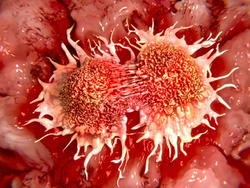 Terapia-anticancerígena-del-limón-congelado