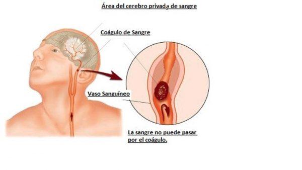 , 1 mes antes tu cuerpo te avisa de esta forma que vas sufrir de una Embolia Cerebral segura, Alimenta y Cura