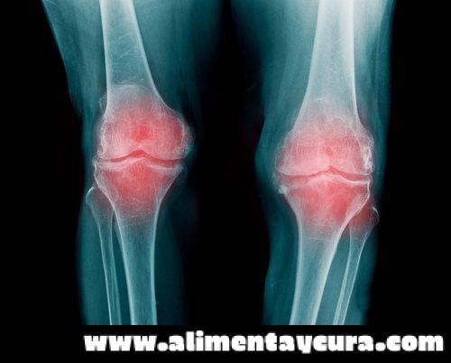 , 5 alimentos recomendados para prevenir la osteoartritis, Alimenta y Cura