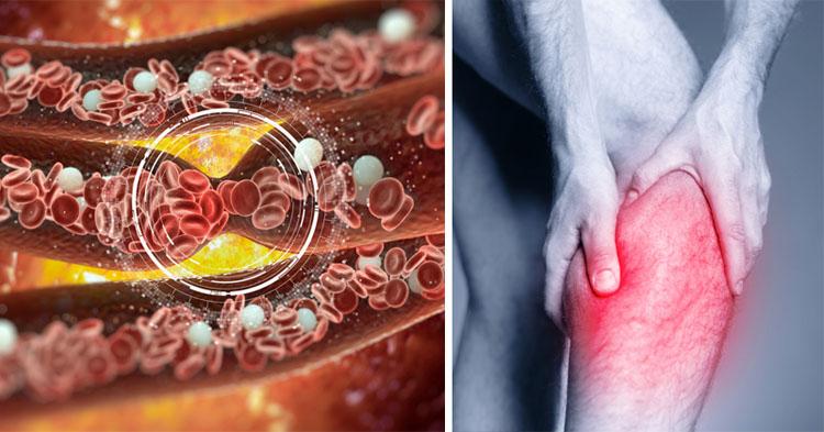 , 6 señales que muestran que quizás tengas un coágulo de sangre, Alimenta y Cura, Alimenta y Cura
