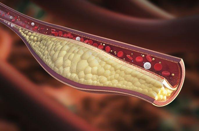 , 9 hábitos que reducen el colesterol sin estatinas peligrosas, Alimenta y Cura