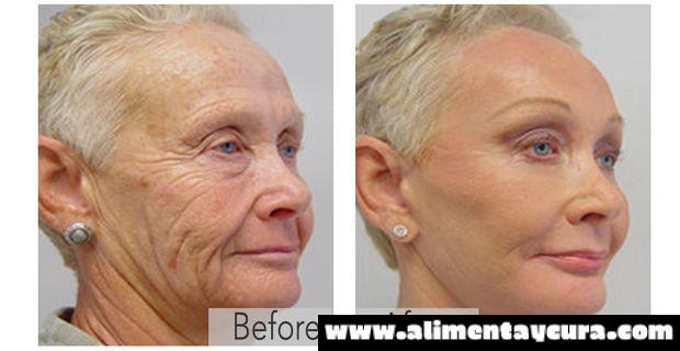 Abuelas de 70 años de edad lucen como de 40 de nuevo sin cirugía: sorprendente!! La mejor solución a las arrugas de la piel de la que usted nunca ha oído hablar