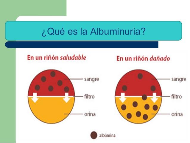 Albuminuria – Definición, causas, síntomas, tratamiento, valores normales