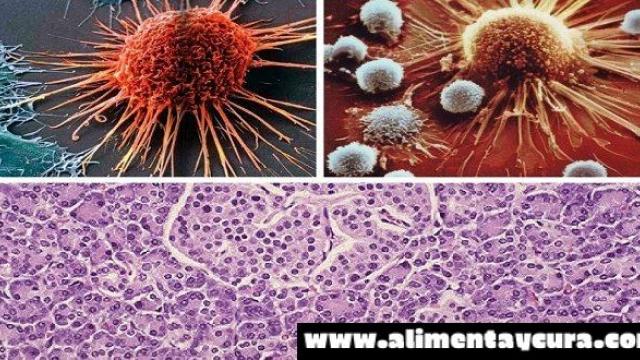 COMO SE ALIMENTAN LAS CELULAS CANCERIGENAS? DESPUES DE LEER ESTO NO VOLVERAS A COMER IGUAL