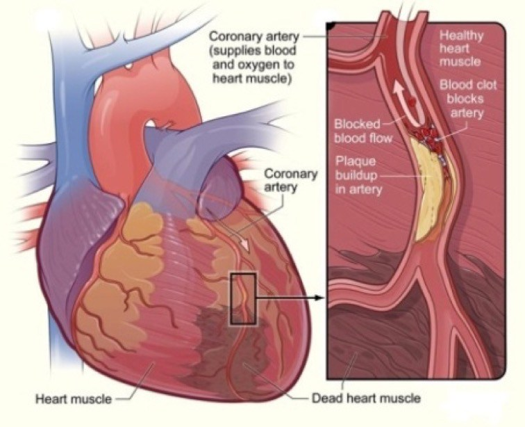 , Conoce los 5 síntomas que te avisan que estas apunto de recibir un ataque del corazón., Alimenta y Cura