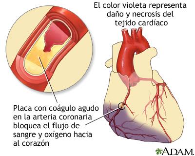 , Conoce los 5 síntomas que te avisan que estas apunto de recibir un ataque del corazón., Alimenta y Cura, Alimenta y Cura