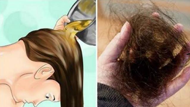 , Detener la pérdida de cabello y hacer crecer su cabello naturalmente, más rápido y más fuerte, Alimenta y Cura