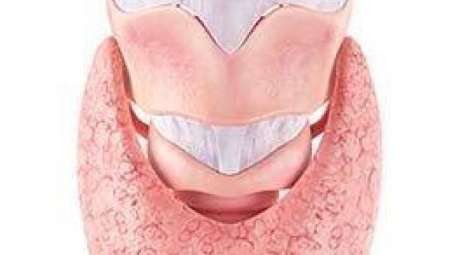 Diferencia Entre El Hipotiroidismo De Hashimoto Y El Hipotiroidismo