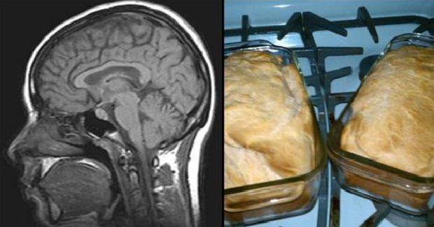 , Precaución: ¡Protege tu cerebro del Alzheimer! Estos 10 productos naturales te podrán ayudar…, Alimenta y Cura
