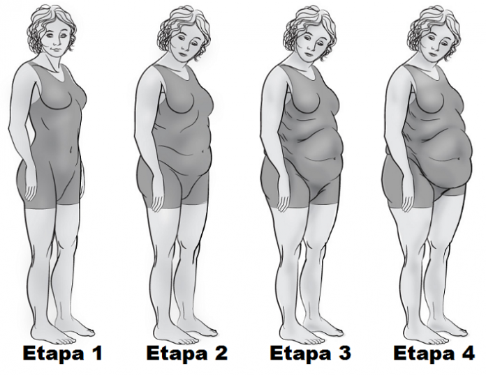 , Si tienes sobrepeso, la fatiga adrenal puede ser la causa, Alimenta y Cura, Alimenta y Cura