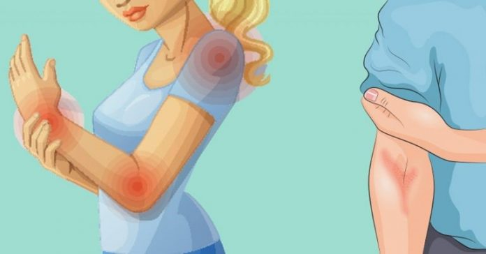 , 10 manifestaciones de que tu intestino está sobrecargado de toxinas y cómo limpiarlo!, Alimenta y Cura