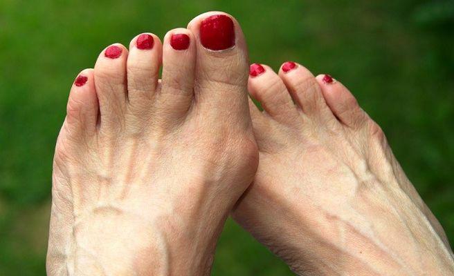 , 4 formas de deshacerse de los bultos en los pies, Alimenta y Cura